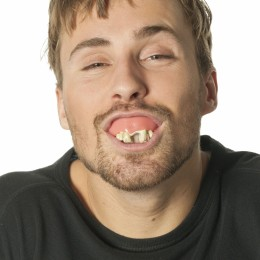 Gebit met rotte tanden